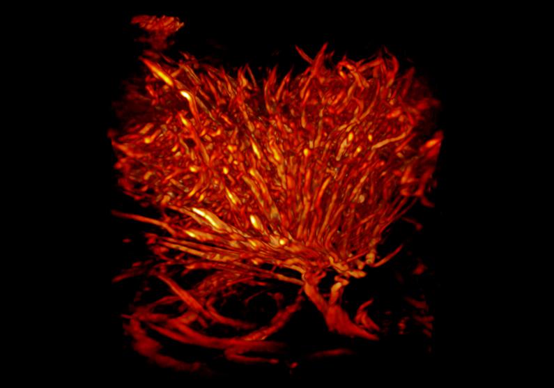 fUS-onderzoek hersentumor